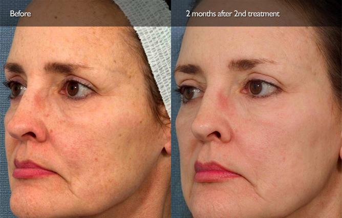 At home facial resurfacing